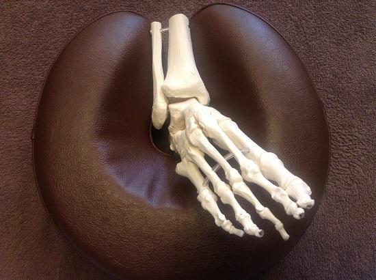 捻挫をした状態の足首